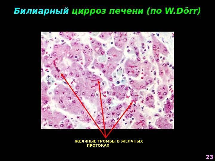 Первичный билиарный цирроз печени: признаки, лечение, прогноз — онлайн-диагностика