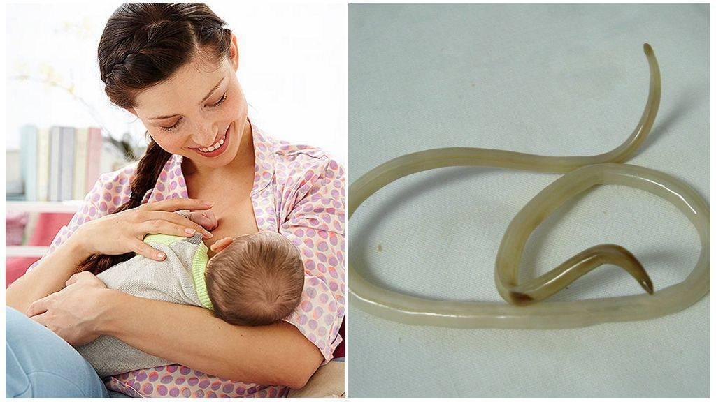глисты у кормящей мамы лечение