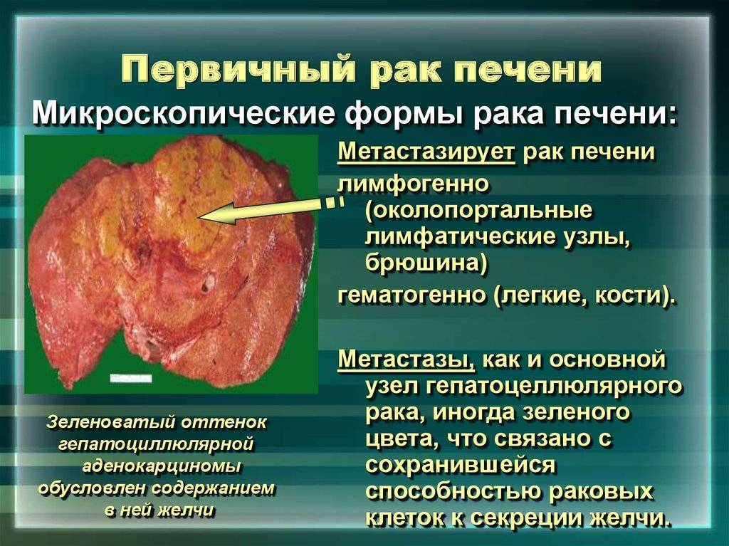 Питание при метастазах печени