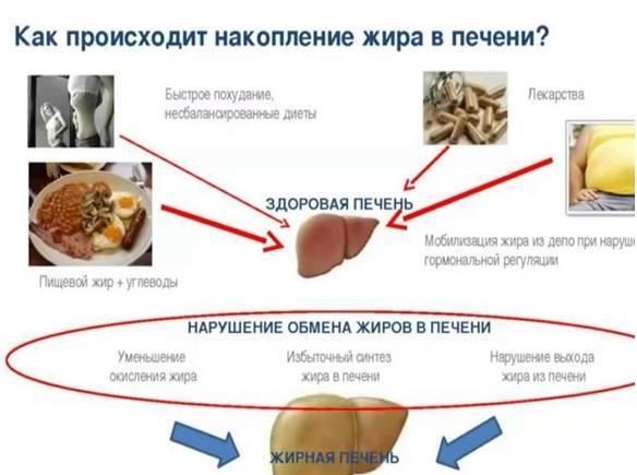 Лечение народными средствами жирового гепатоза печени