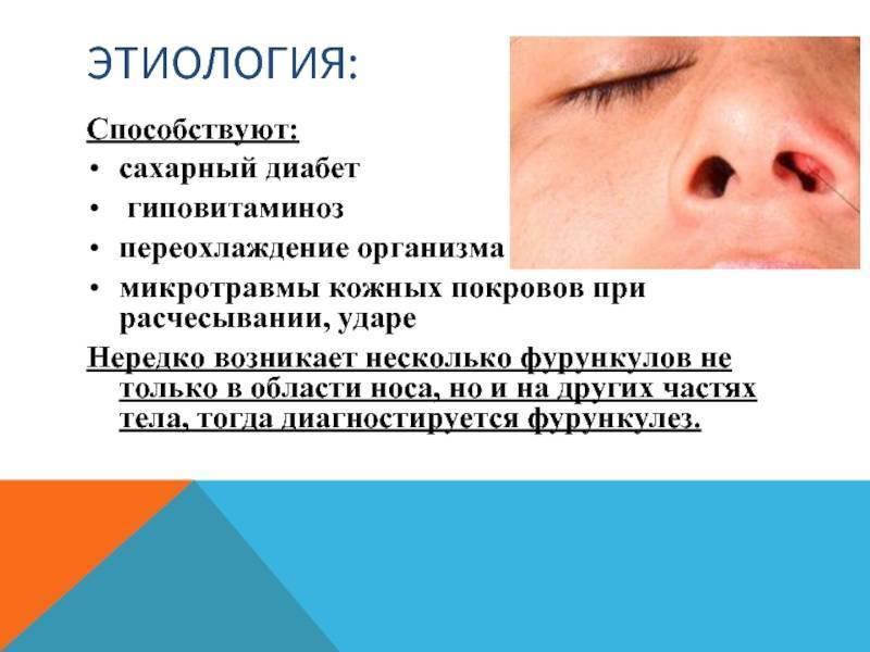 Болезни носа — что делать и как лечить заболевания