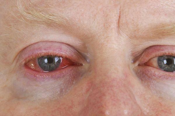 Глаз чешется слезится и болит что делать