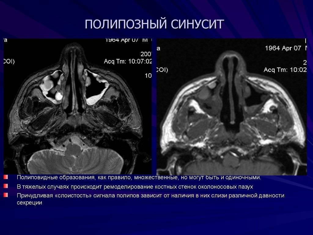 Методы эффективного лечения катарального риносинусита