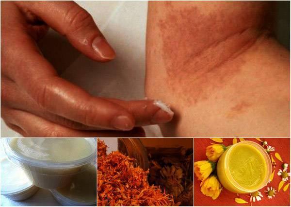 чистотел при аллергическом дерматите