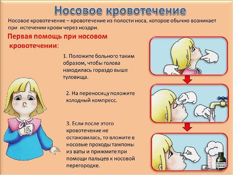 Как остановить кровь из носа в домашних условиях: у взрослого и ребенка, быстро, правильно, при давлении, после удара