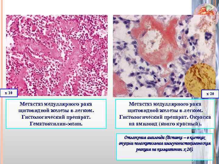 Узел щитовидной железы: доброкачественная опухоль или фолликулярный рак?