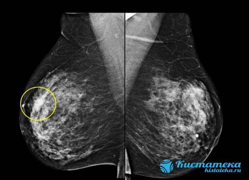двусторонняя диффузная фиброзно кистозная мастопатия