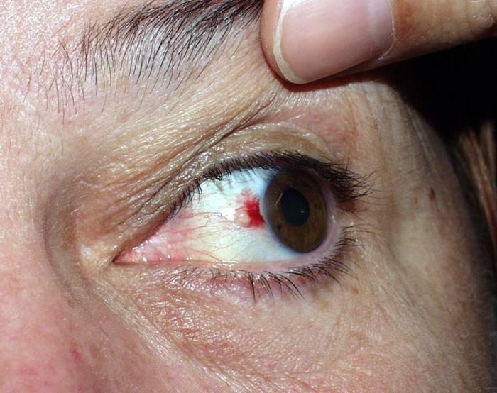 Образование на глазном яблоке: причины и лечение