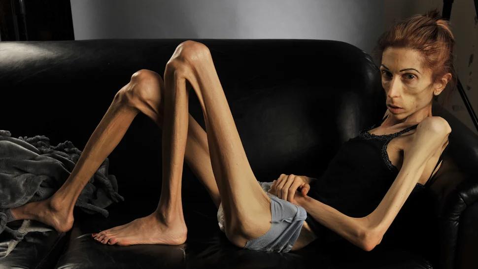 10 страшных последствий анорексии