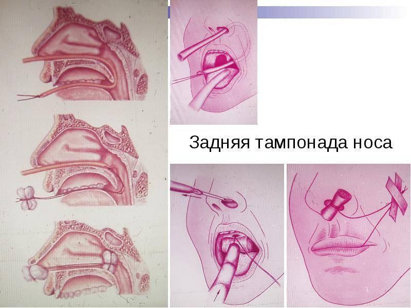Турунды в нос