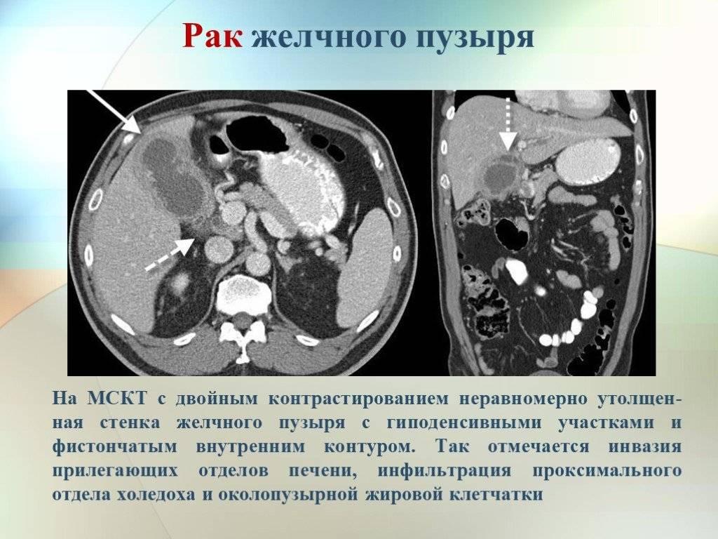 Рак желчного пузыря: первые симптомы, лечение, прогноз — симптомы