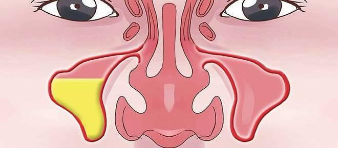 левосторонний гемисинусит