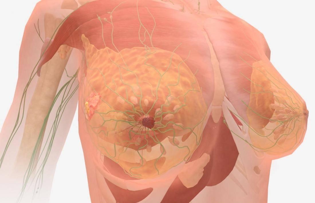 рак молочной железы это