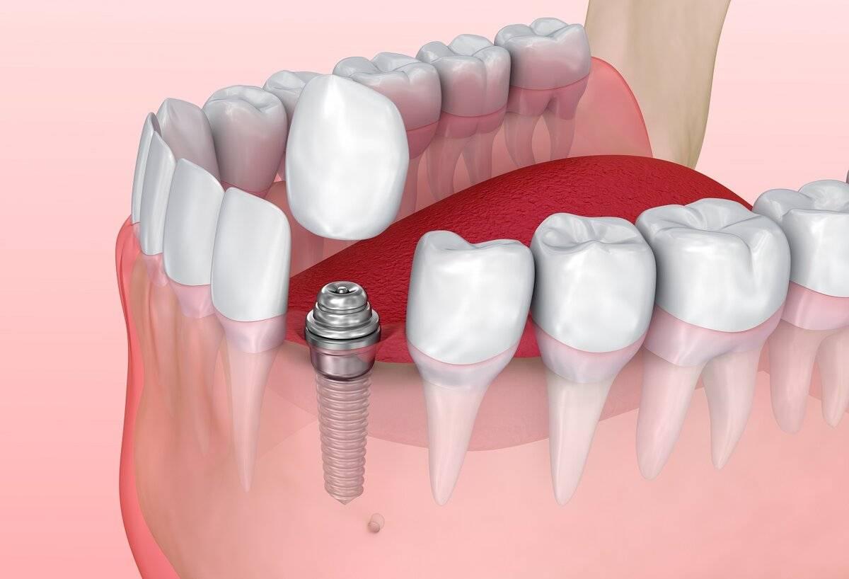 Коронка на зуб фото, все виды, как выбрать коронку - какая лучше