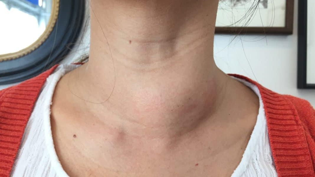 беременность при щитовидной железе
