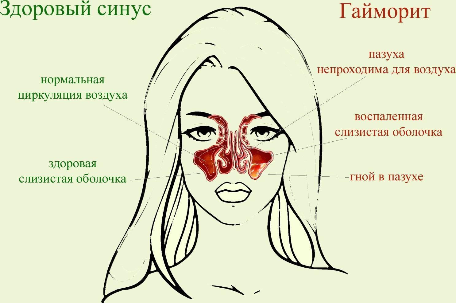 От насморка болит глаз и лоб