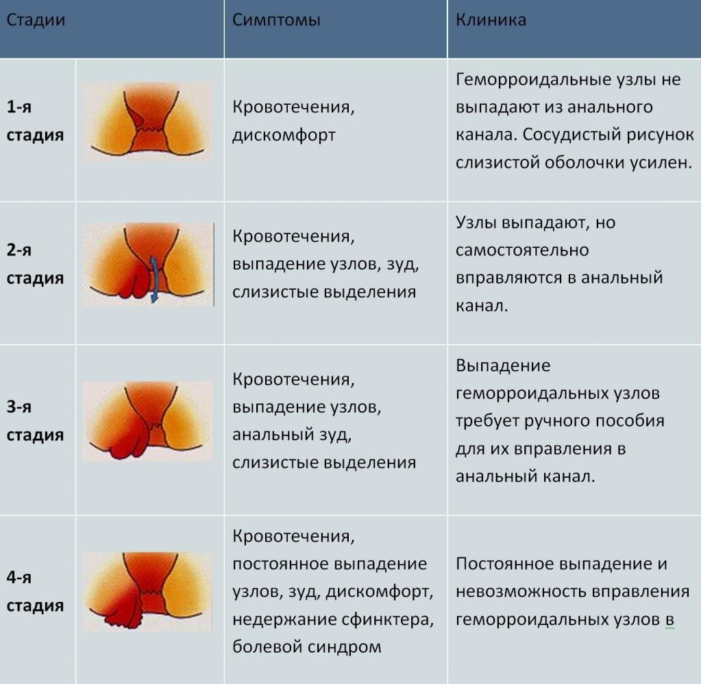 Геморрой 4 стадии: лечение, методы, последствия