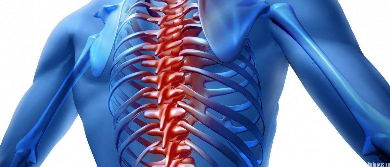 мази при невралгии грудного отдела