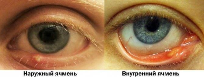 ячмень на глазу заразен