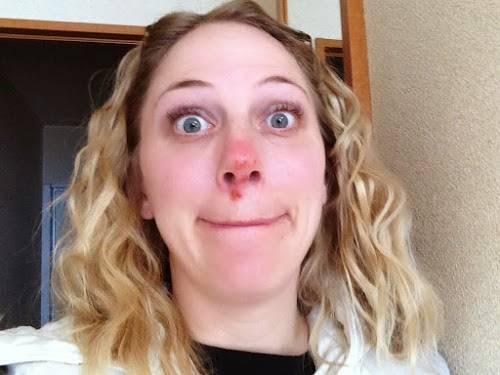 Чем лечат герпес в носу? эффективные средства