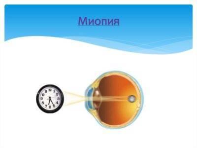 Врожденная миопия высокой степени у грудного ребенка: вопросы по офтальмологии