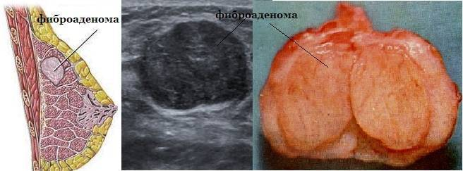 Аденома в груди болит