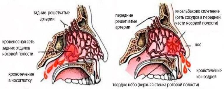 Кровь из носа это какое давление повышенное или пониженное давление