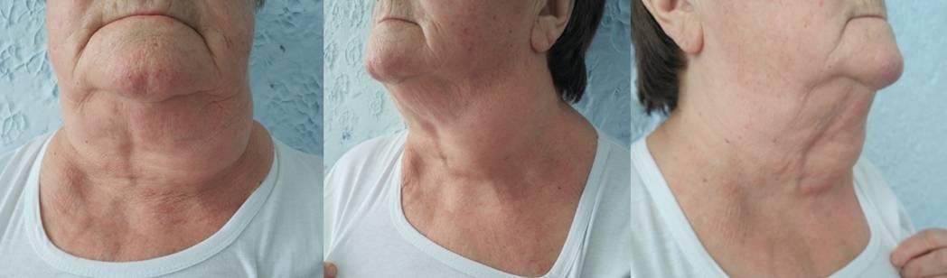 Что может показать биопсия щитовидной железы