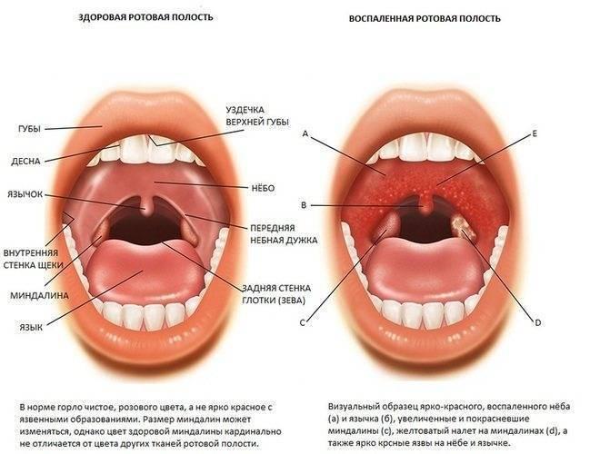 Причины, симптомы и лечение хронического декомпенсированного тонзиллита