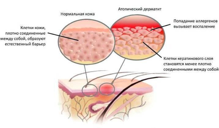 атопический дерматит не чешется