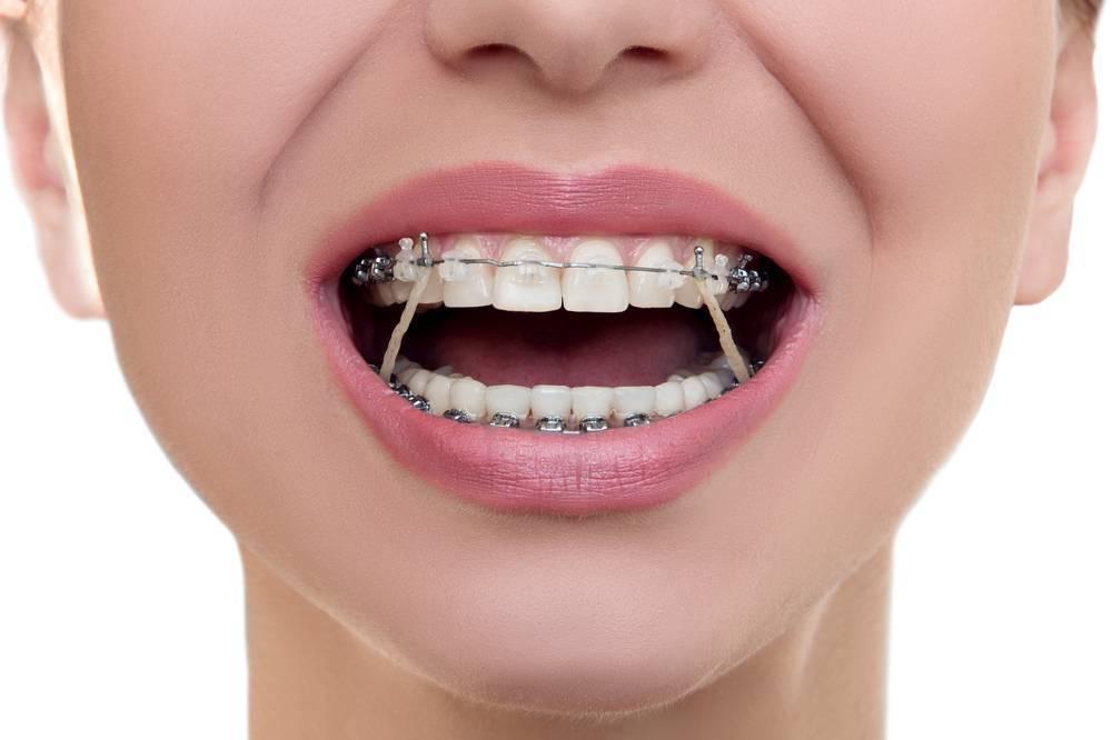 стоматология ортодонтия