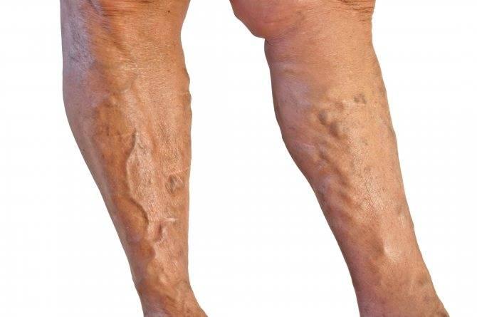 атеросклероз и варикоз