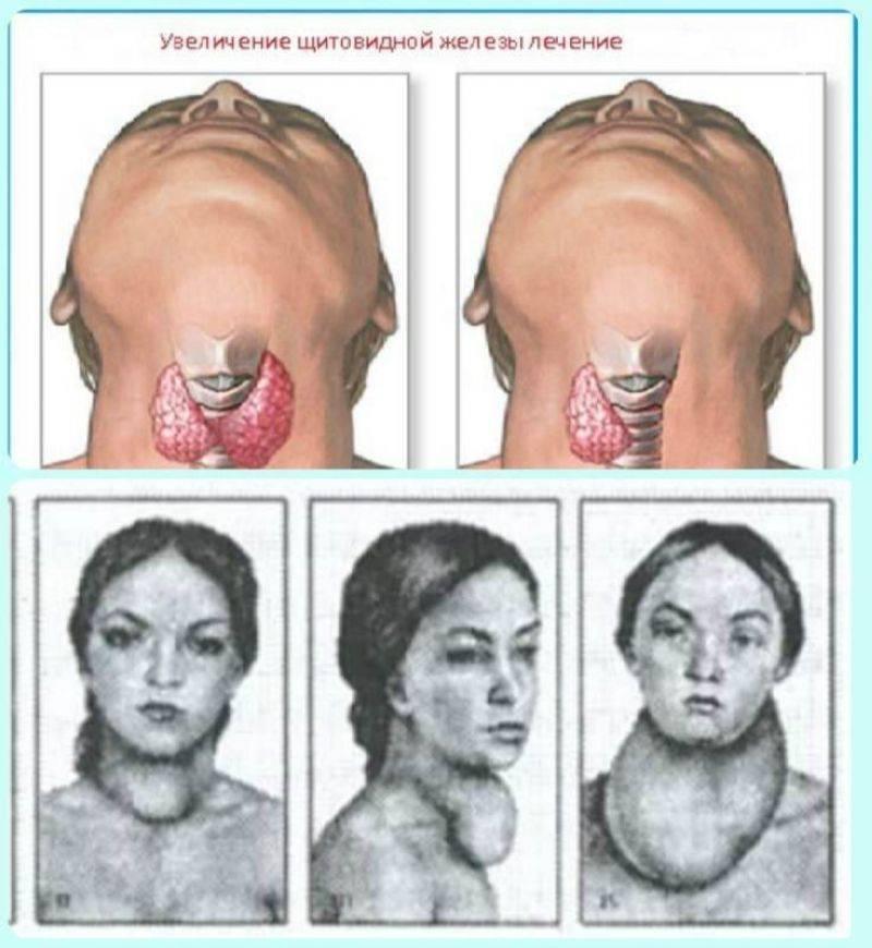 состояние после удаления щитовидной железы
