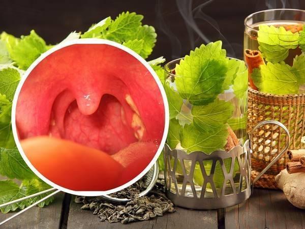 Лечение фарингита народными средствами – самые эффективные методы и домашние лекарства