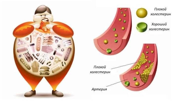 Причины низкого уровня холестерина в крови и методы его повышения до нормальных значений
