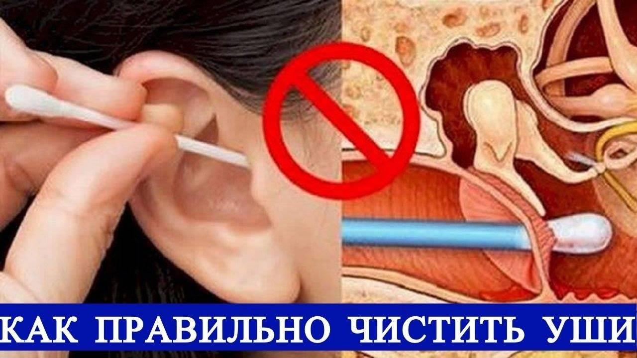 Как правильно чистить уши ребенку: советы родителям