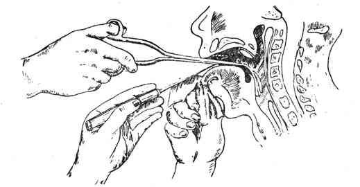 Неприятные ощущения в пищеводе: что это может быть? возможные диагнозы и причины