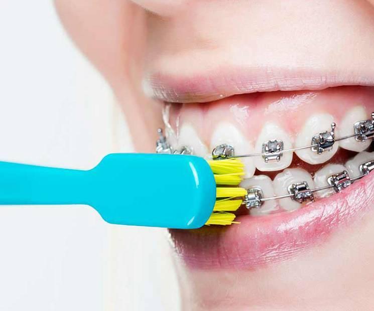 Как чистить зубы, когда стоят брекеты
