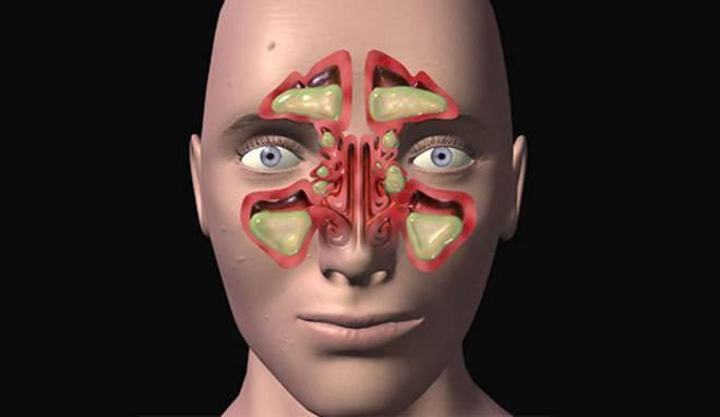 Синусит верхней челюсти симптомы и лечение