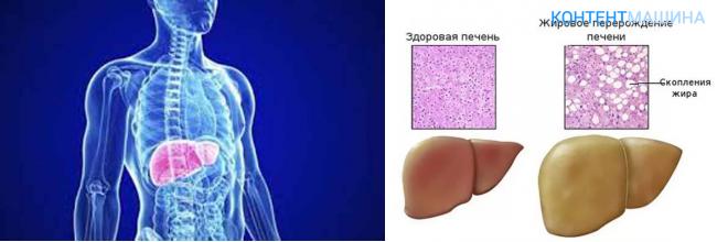 признаки жирового гепатоза печени