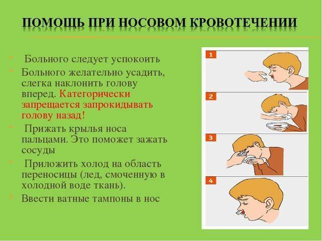 оказание первой помощи при кровотечении из носа