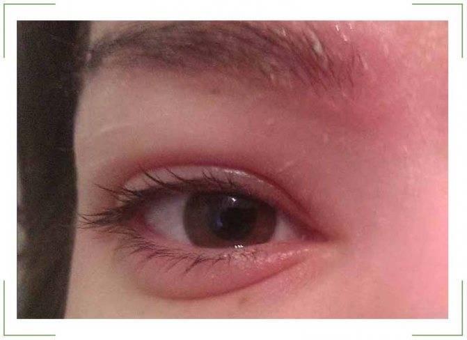 В солнечную погоду болят глаза
