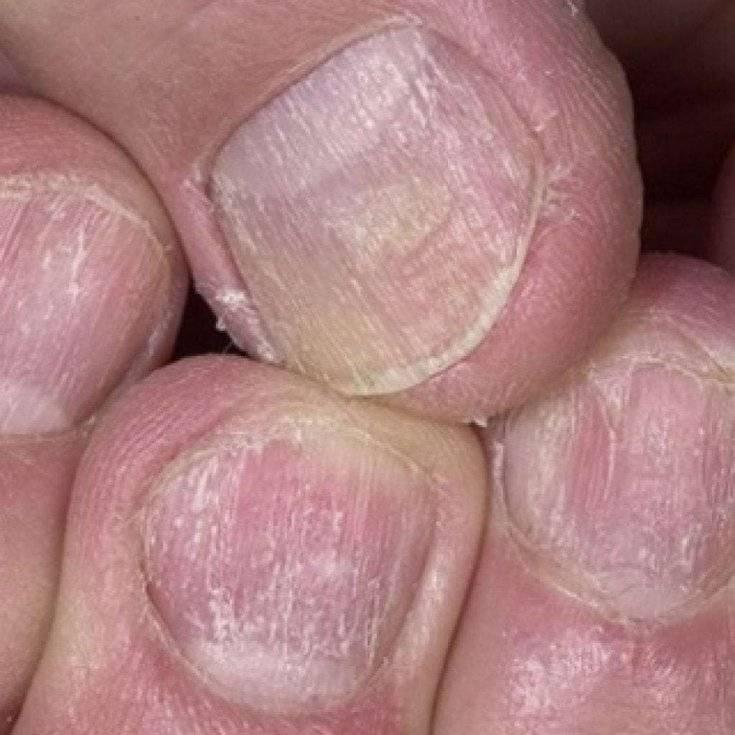 Виды и симптомы псориаза ногтей, фото, лечение. отличия от грибка