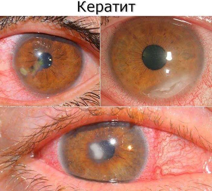 кератит глаза симптомы