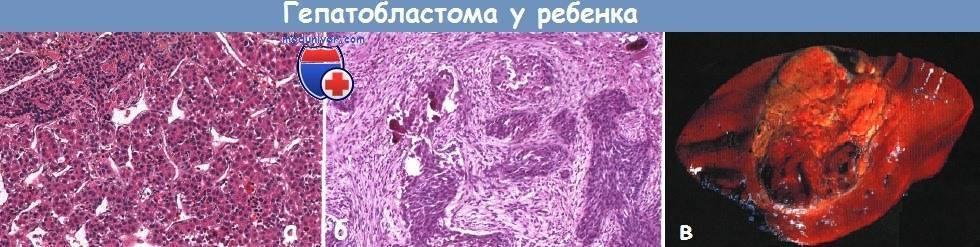 Первичный рак печени: симптомы, признаки, лечение, причины и прогноз жизни
