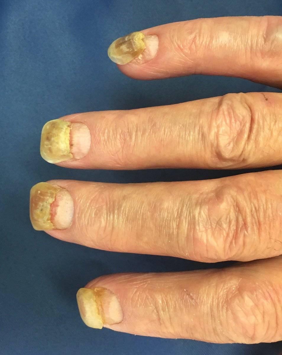 Как лечить псориаз ногтей дома?