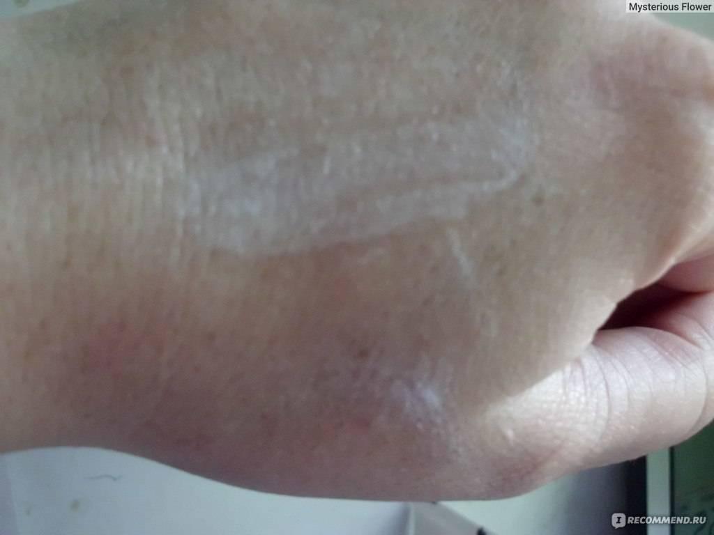Болтушки от дерматита рецепт