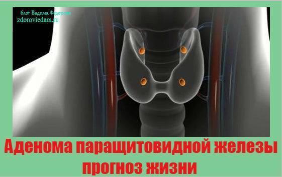 удаление аденомы паращитовидной железы