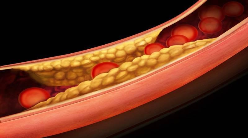 Холестерин: важные функции для здоровья