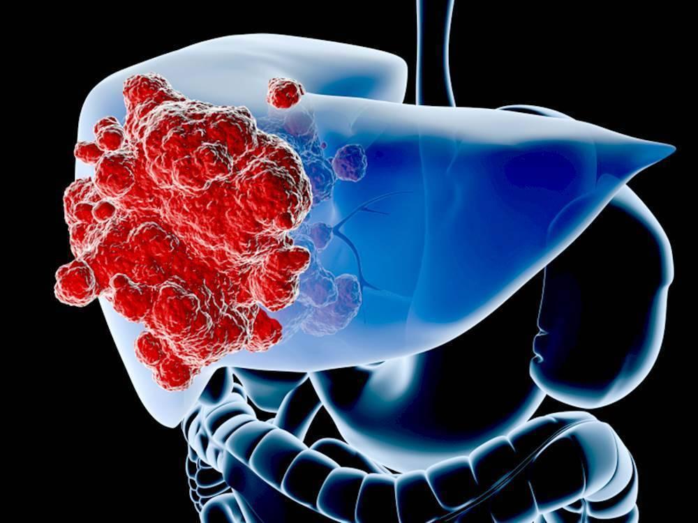 гепатоцеллюлярный рак печени прогноз